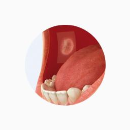Plaies orales